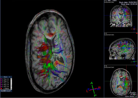 brain-dti